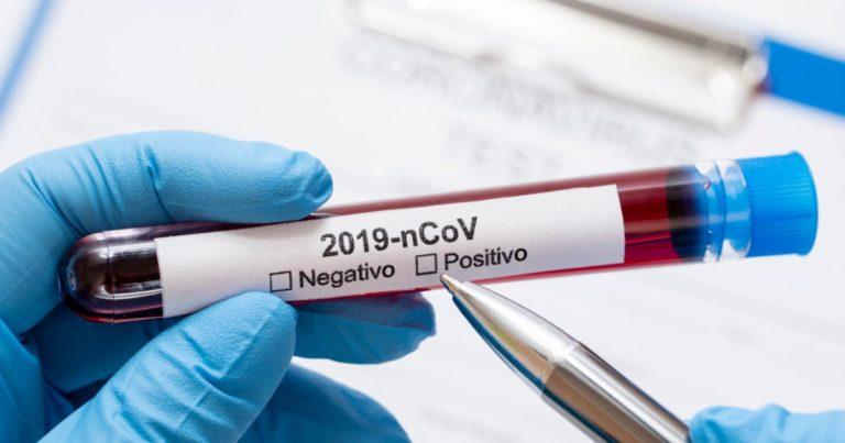Teste rápido é decisivo na luta contra o coronavírus (covid-19)